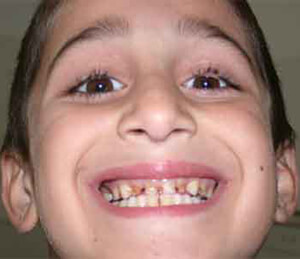Armenian child smiling with bad teeth.
