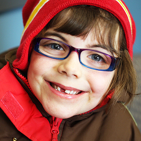 child smiling with missing tooth