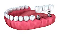 replacing multiple missing teeth with dental implants