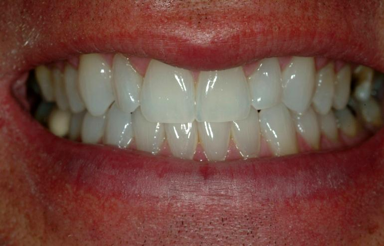 Invisalign after smile