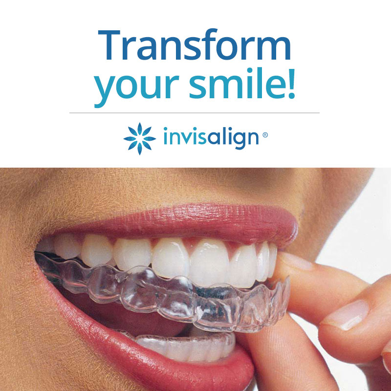 close up of woman putting in Invisalign