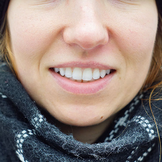close up of a womans teeth