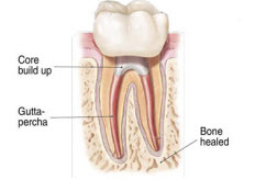 RootCanal_4