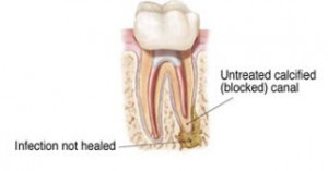RootCanal_5