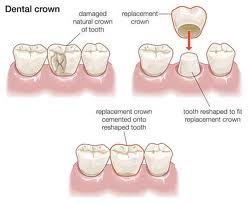 Creating a dental crown - diagram of process