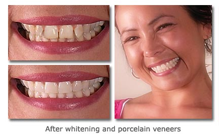 after whitening and porcelain veneers