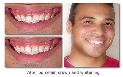 after porcelain crown and whitening