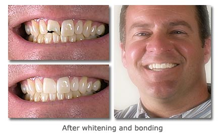 dental bonding - before and after images